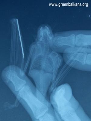 - На рентгеновата снимка се вижда металния елемент, поставен в костта.